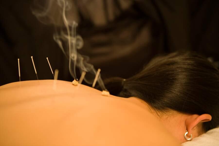 Chine : les moxas, l'acupuncture par la chaleur