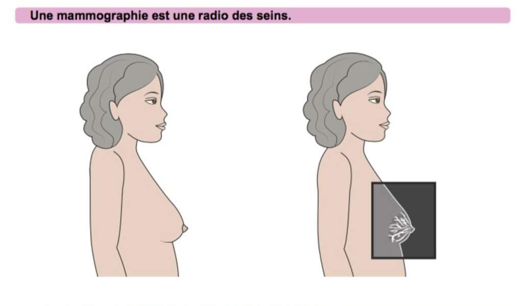 A quoi sert la mammographie ?