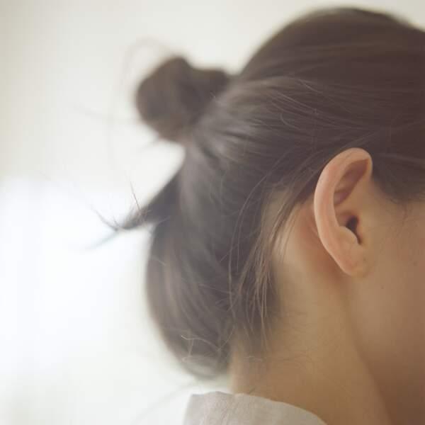 Le recollement des oreilles