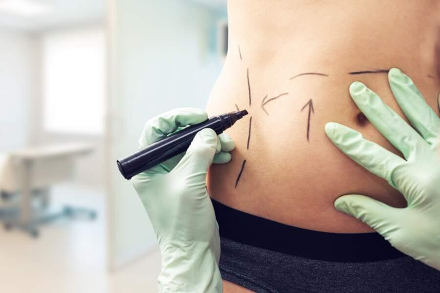 La correction du ventre