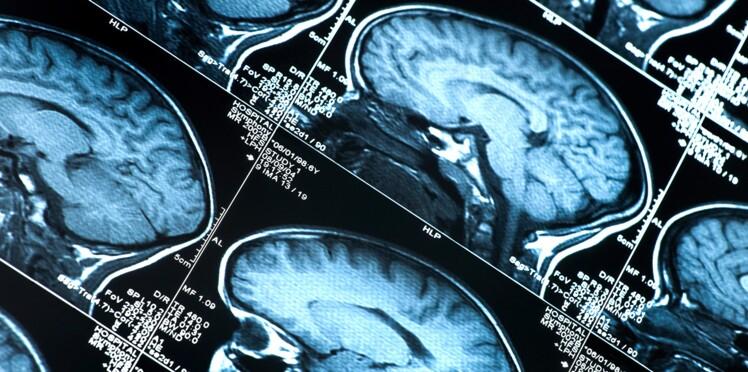 Et maintenant un lien entre AVC et Alzheimer ?