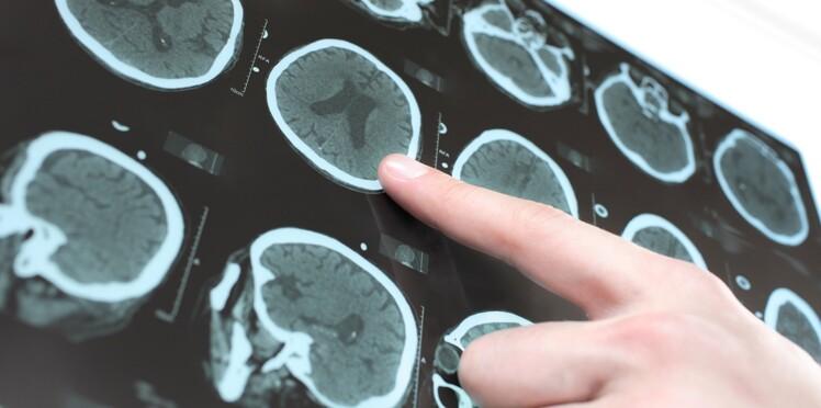 Un nouvel espoir contre Parkinson