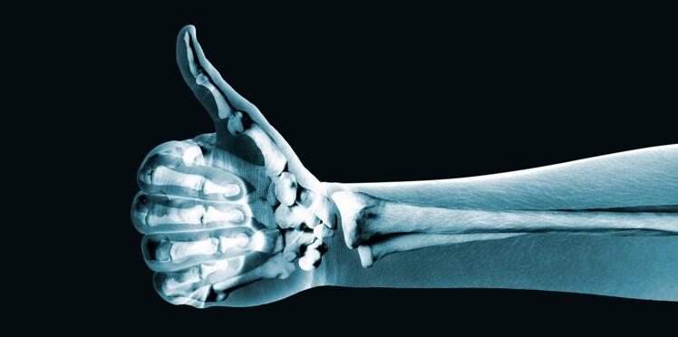 Un nouvel os artificiel qui agit comme un vrai