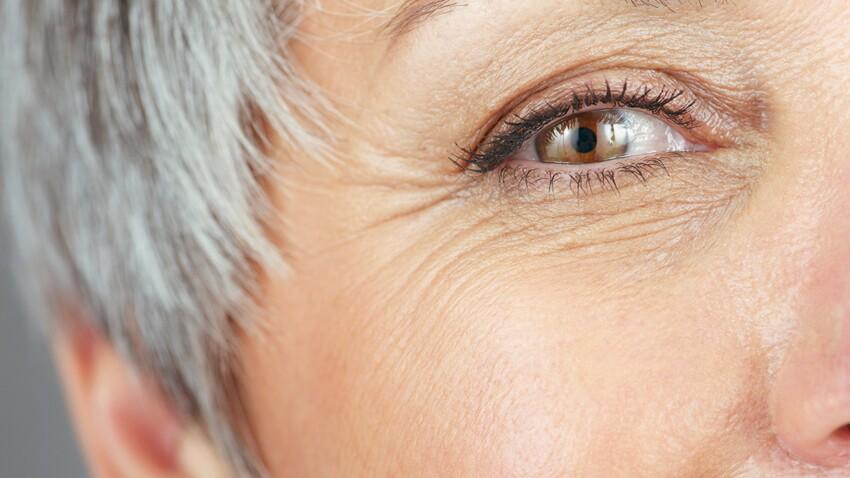 5 vérités sur la cataracte