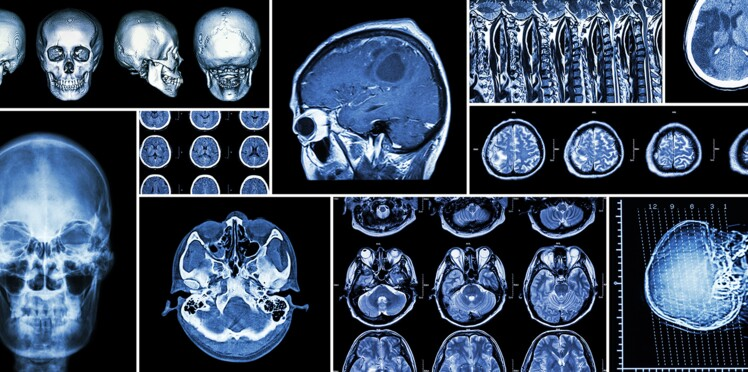 Alzheimer, Parkinson… les raisons d'espérer