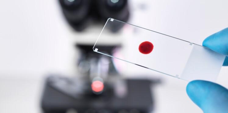 Un test sanguin pour mieux soigner la dépression ?