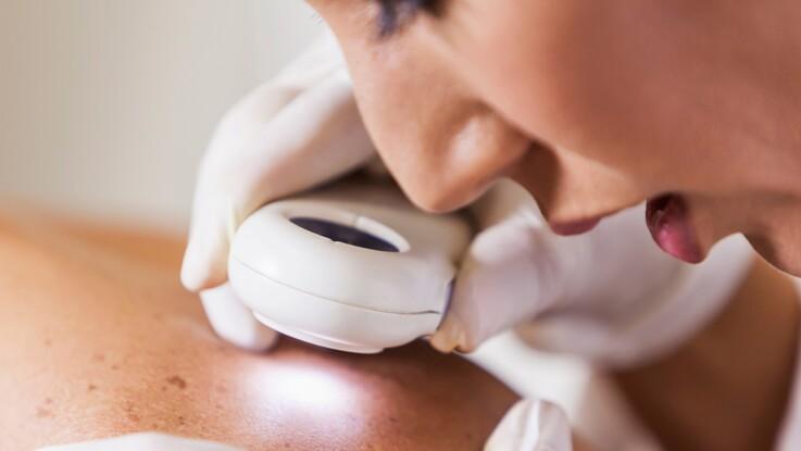 Cancer de la peau : faites-vous dépister !