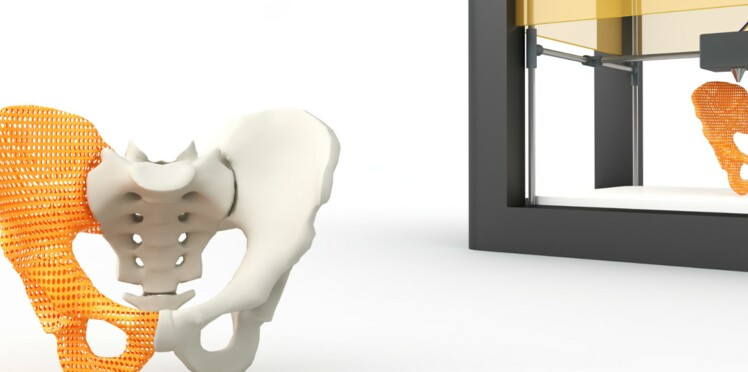 L'imprimante 3D va-t-elle tout révolutionner?