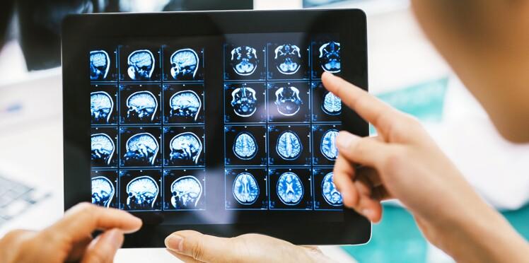 Prédire Alzheimer avant les premiers symptômes ?