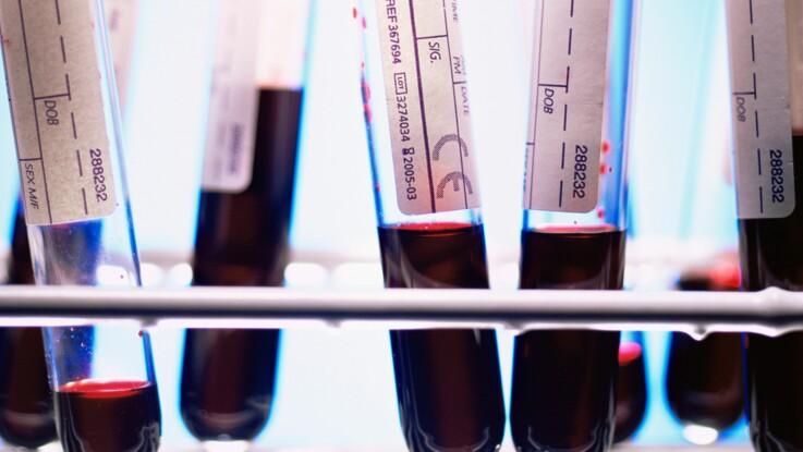 Prise de sang : comment lire ses résultats ?