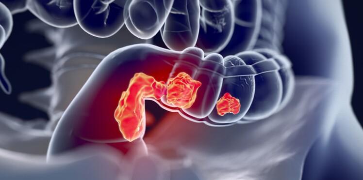 Cancer du côlon : un nouveau test mesure son agressivité