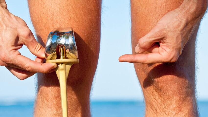 5 vérités sur la prothèse du genou