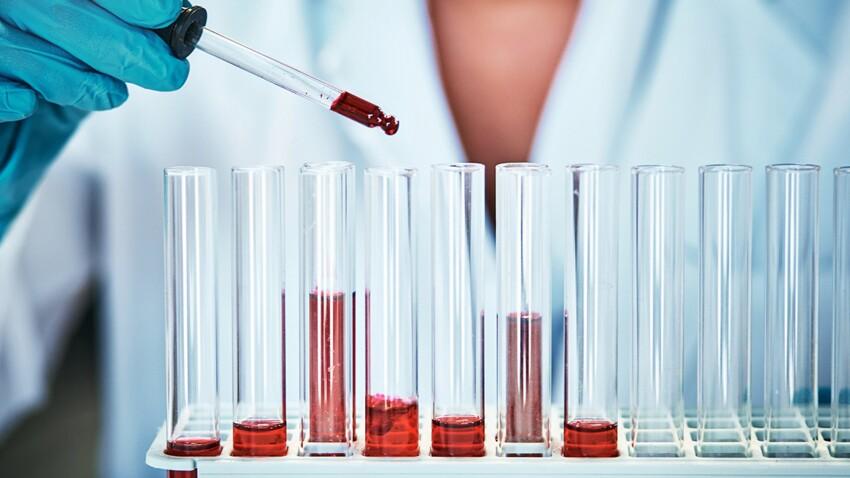 Fibromyalgie : un test sanguin pour dépister la maladie ?