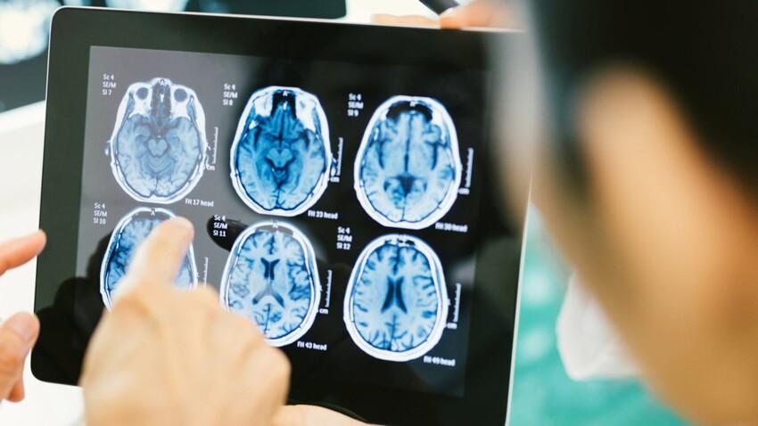 Parkinson : un traitement enfin efficace ?