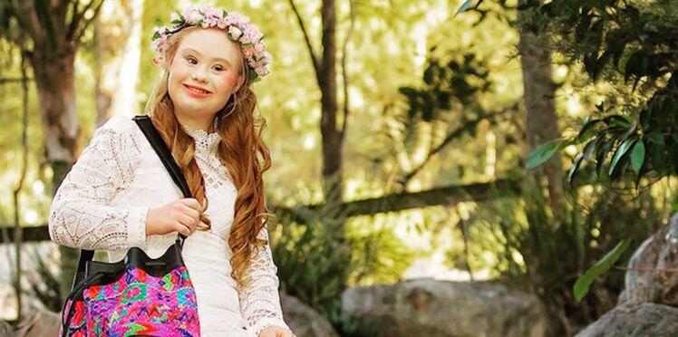 Atteinte de trisomie 21, cette jeune fille réalise son rêve de devenir mannequin