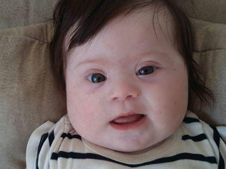 La fabuleuse histoire de la petite Louise, atteinte de trisomie #jesuismaman