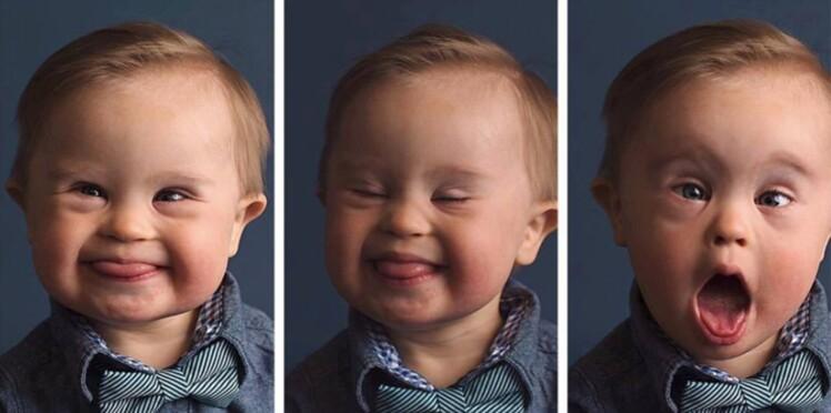 VIDEO - L'incroyable histoire de ce bébé trisomique devenu égérie d'une marque