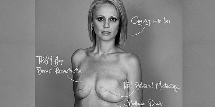 Elle s'affiche nue sur Facebook pour montrer les conséquences du cancer du sein