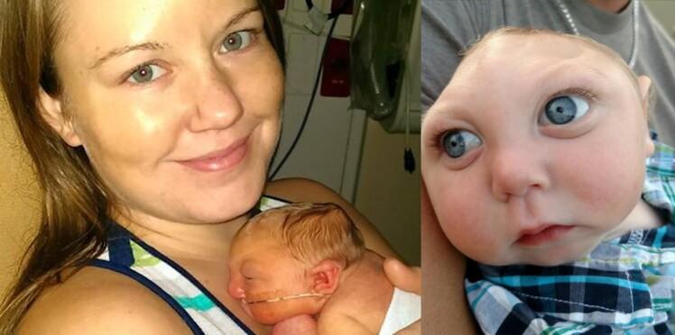 Ce bébé atteint d'une malformation crânienne défie les pronostics et fête son 1er anniversaire