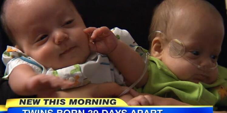 Des jumeaux naissent à 39 jours d'intervalle