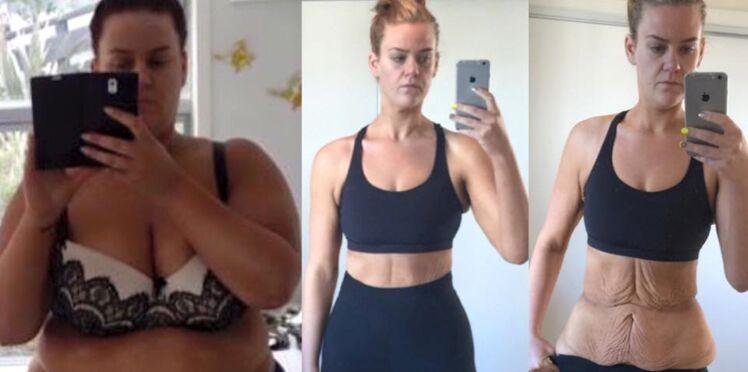 """Accusée de mentir sur sa perte de poids, elle dévoile une incroyable photo """"avant et après"""""""