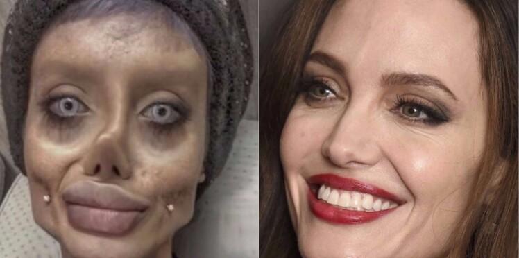 Une jeune fille de 19 ans subit une quarantaine d'opérations pour ressembler à Angelina Jolie