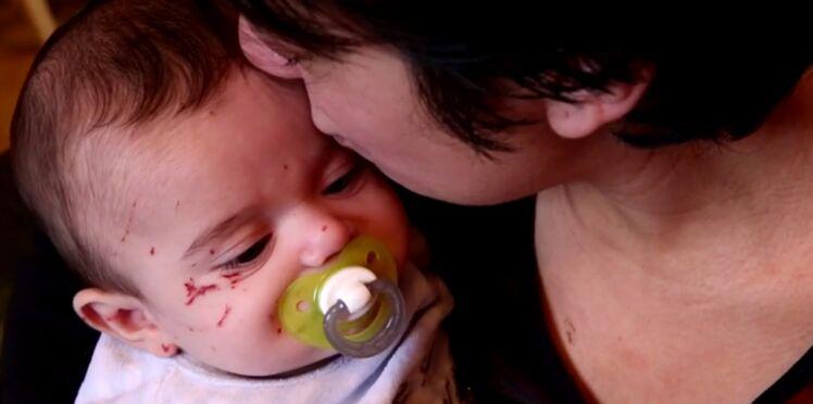 Hospitalisé, un bébé de 4 mois griffé par une fillette de 7 ans