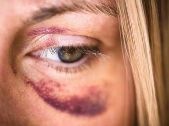 1 femme sur 4 est victime de violences conjugales