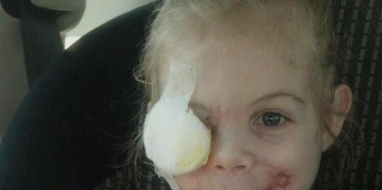 Une fillette défigurée bannie d'un fast-food : info ou intox ?