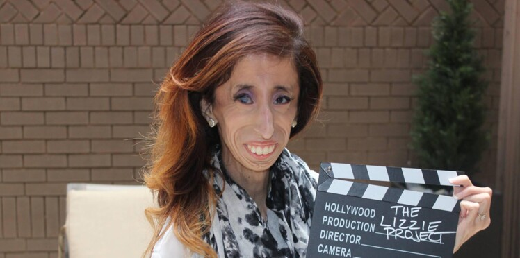 """Lizzie Velasquez, la """"femme la plus moche du monde"""", soutenue par des stars pour sa campagne"""
