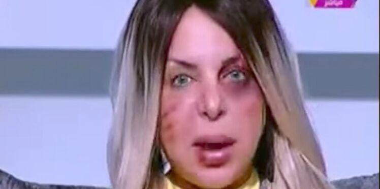 Une journaliste présente son émission le visage tuméfié pour dénoncer les violences faites aux femmes