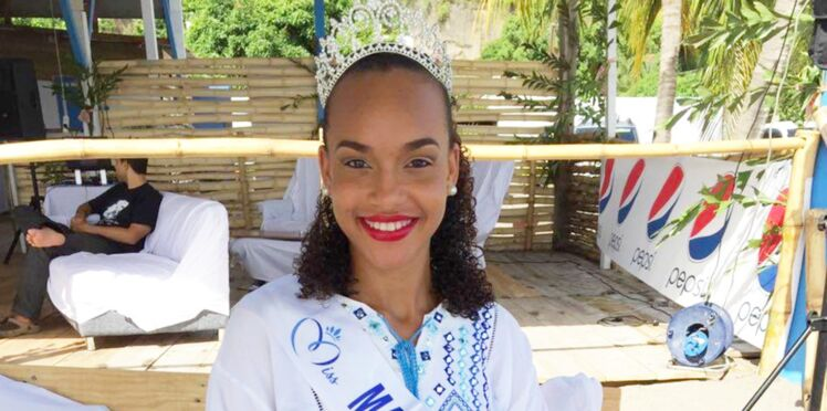 Miss France 2018 : Miss Martinique, disqualifiée à cause d'un tatouage