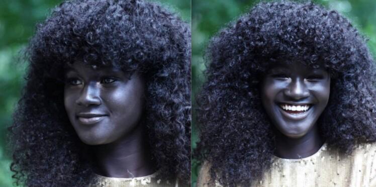 """Moquée pour sa couleur de peau jugée """"trop sombre"""", elle devient mannequin"""