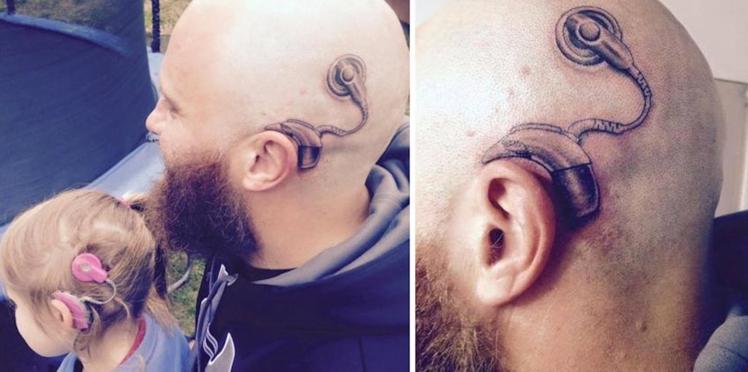 Pour soutenir sa fille atteinte de surdité profonde, il se fait tatouer un implant auditif