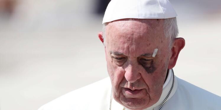 Pourquoi le pape a-t-il un œil au beurre noir ?