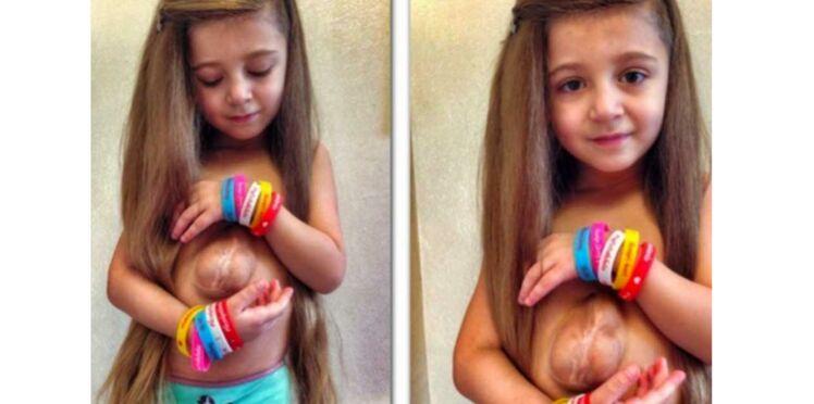 Cette fille vit avec le coeur en dehors de la poitrine et a besoin de votre aide