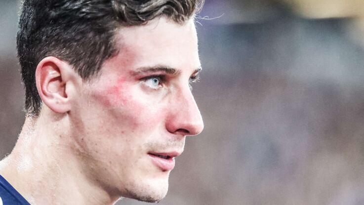 Photo – Pierre-Ambroise Bosse dévoile une image choc de son agression