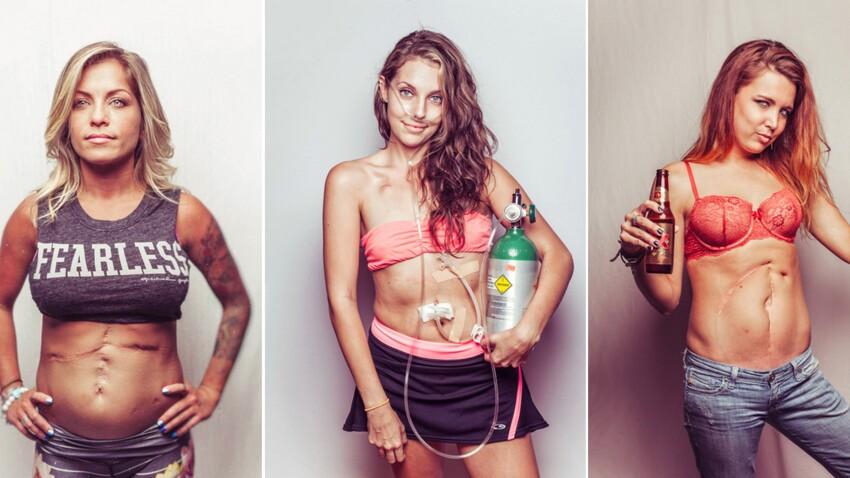 Photos : « Salty Girls » : la beauté derrière la mucoviscidose