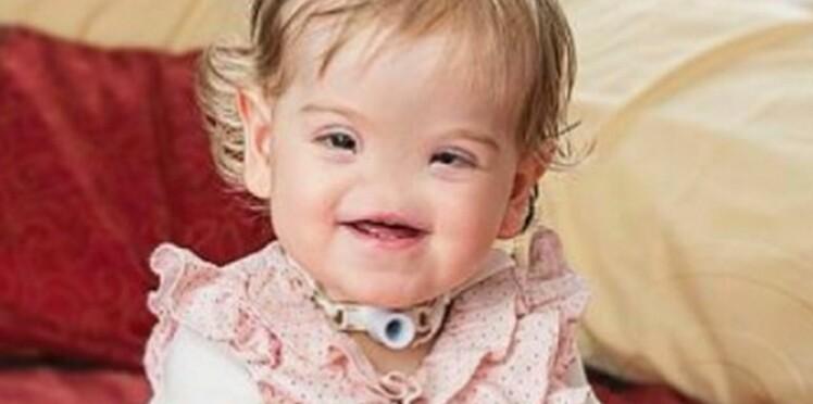 Tessa, la petite fille née sans nez