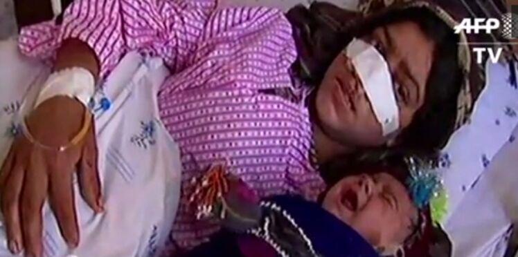 Le comble de l'horreur: un Afghan coupe le nez de sa femme après une dispute conjugale