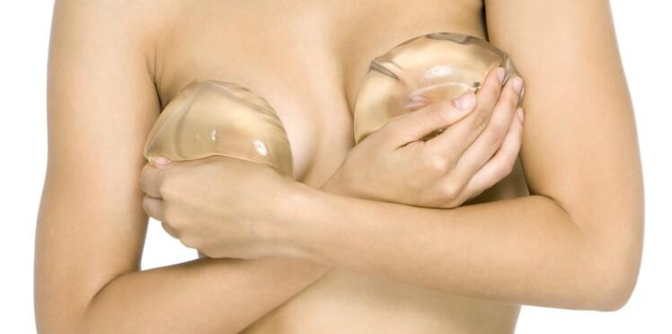 Les prothèses mammaires à l'origine d'une forme rare de cancer?