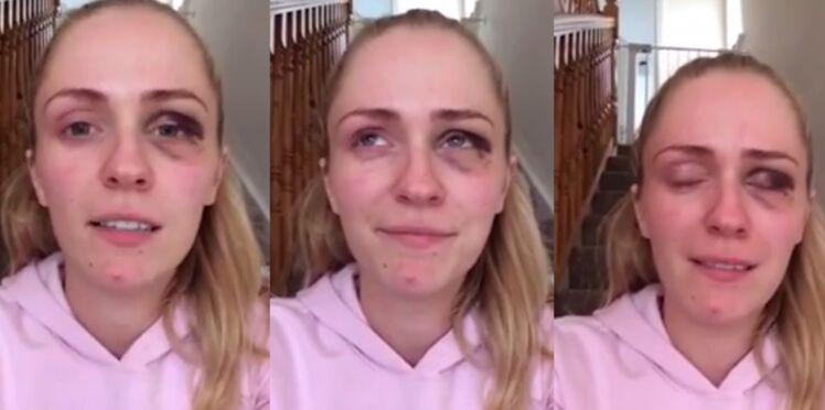 Violences conjugales : une blogueuse se confie dans une vidéo bouleversante