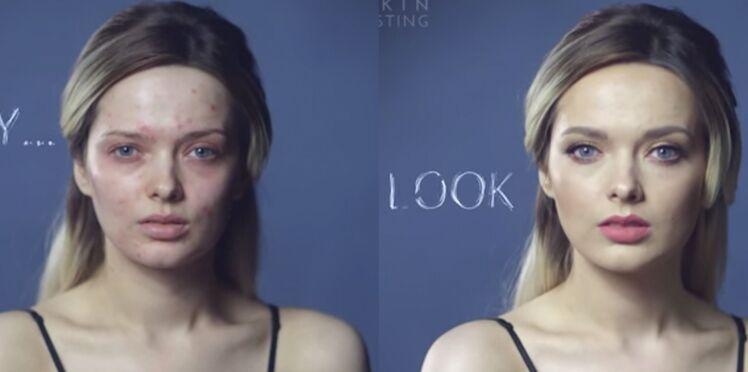 Vidéo : Une youtubeuse beauté souffrant d'acné dénonce le harcèlement des internautes