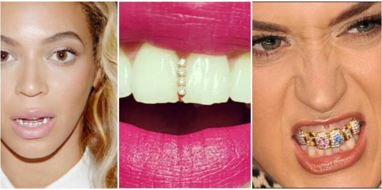 Bijoux de dents : la tendance pas si glamour