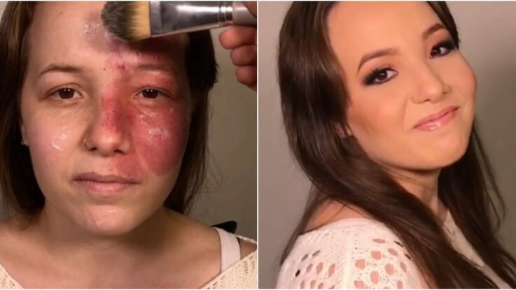 a9a7892c33ea Vidéo   elle camoufle une tache de naissance impressionnante grâce au  maquillage