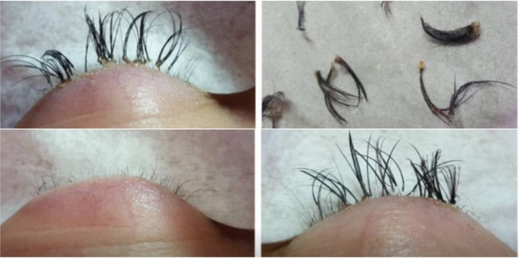 Extensions de cils, attention aux colles dangereuses