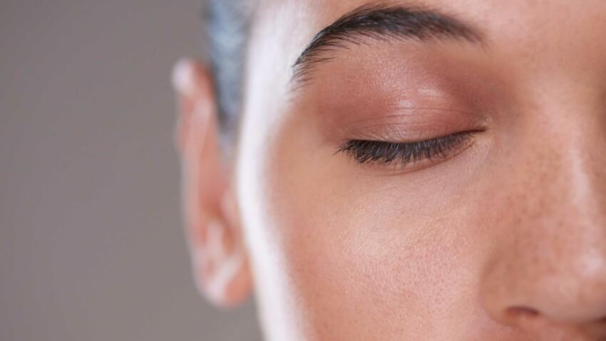 5 remèdes naturels contre les taches brunes