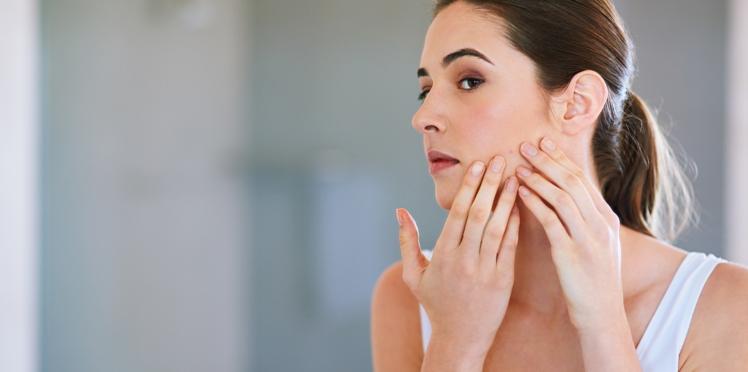 8 choses que vous ne saviez pas sur l'acné adulte