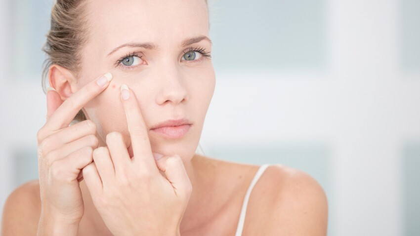 Acné de l'adulte : 8 soins cosmétiques pour en venir à bout
