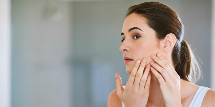 Comment savoir si on a la peau grasse